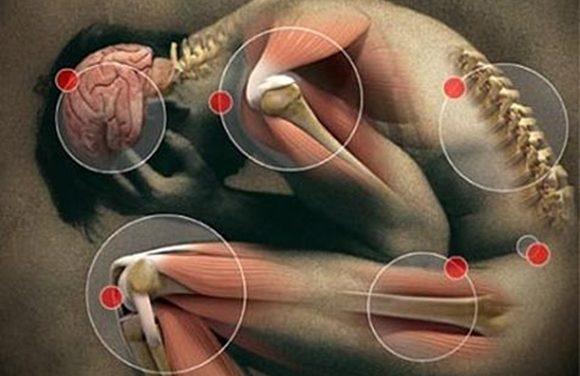 Fibromialgia e Exercício