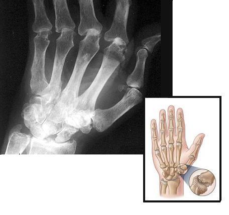 artrose-punho