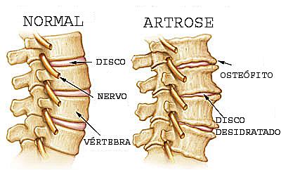 artrosecoluna
