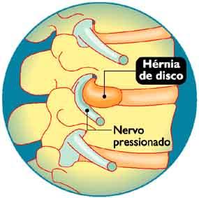 Imagens sobre Hernia de Disco