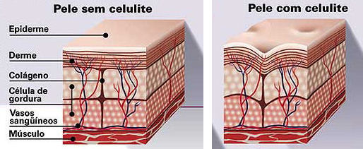 celulite2