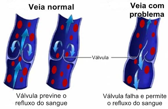 varizes funcionamento da veia