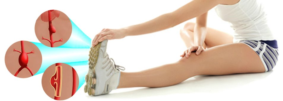 Exercício e Aneurisma